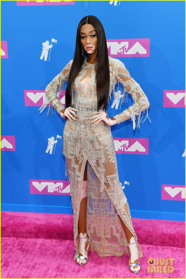 winnie-harlow-2018-vma-red-carpet-01